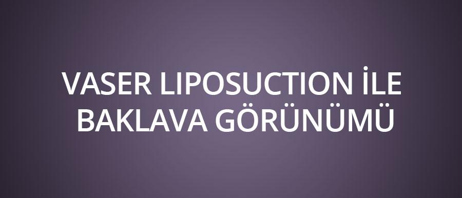 vaser-liposuction-ile-baklava-görünümü